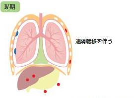 中皮腫病期