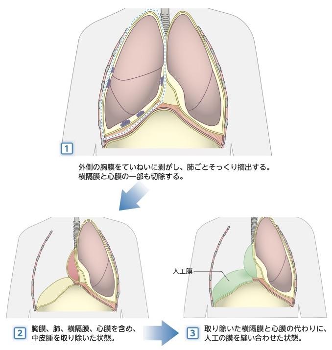 胸膜外肺全摘術(EPP)